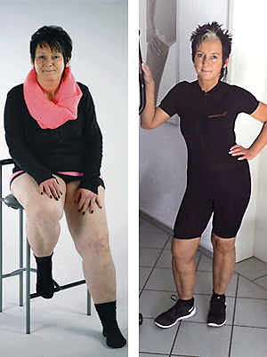 hypoxi method and lipoedema